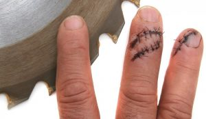 image of fingers with stitches posed next to a saw blade